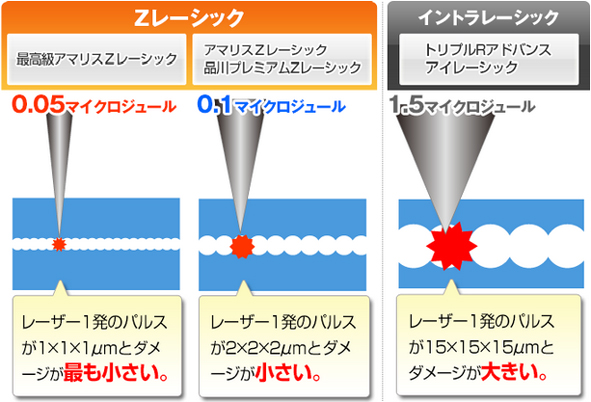 フラップ作成時のレーザー照射のダメージを抑える