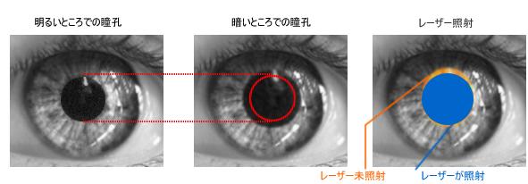 瞳孔の大きさとレーシックの適応