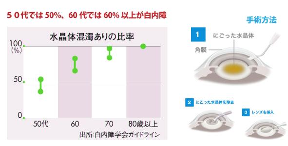 50代では50%、60代では60%以上が白内障