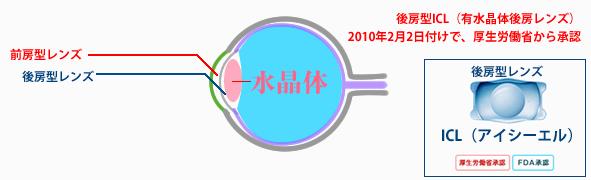 折りたたみ式のため、より切開創を小さくすることができます。また、両眼同日の手術が可能です。